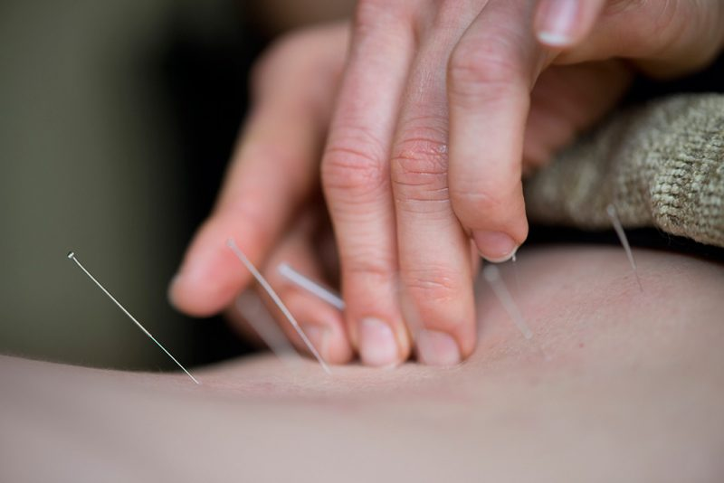 Dane County Family Acupuncture